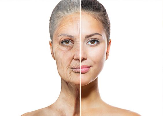 Aging -side effect of Soda